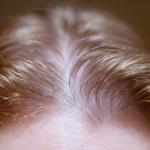 İnce Telli Saçlar